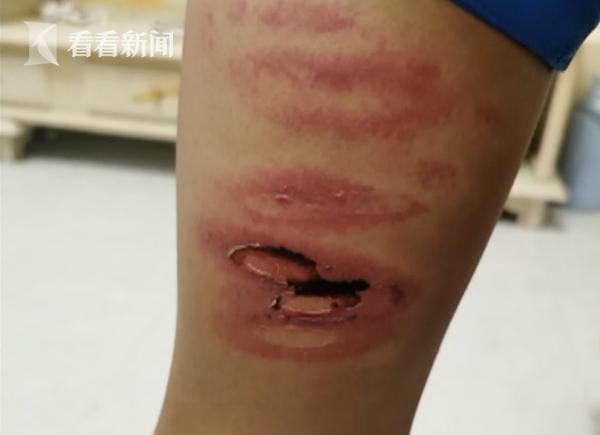 Học sinh lớp 8 bị giáo viên đánh bầm dập, không dám hé răng vì sợ bị trừng trị - ảnh 2