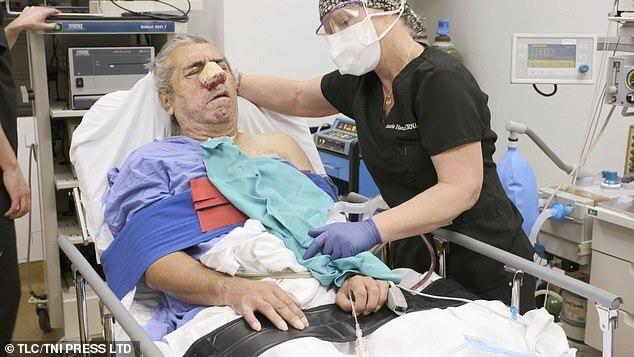 Bị 2 khối u siêu to khổng lồ mọc trên mặt, người đàn ông tuyệt vọng cầu cứu chương trình nặn mụn khét tiếng giúp đỡ - Ảnh 4.