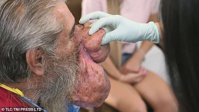 Bị 2 khối u siêu to khổng lồ mọc trên mặt, người đàn ông tuyệt vọng cầu cứu chương trình nặn mụn khét tiếng giúp đỡ - Ảnh 5.