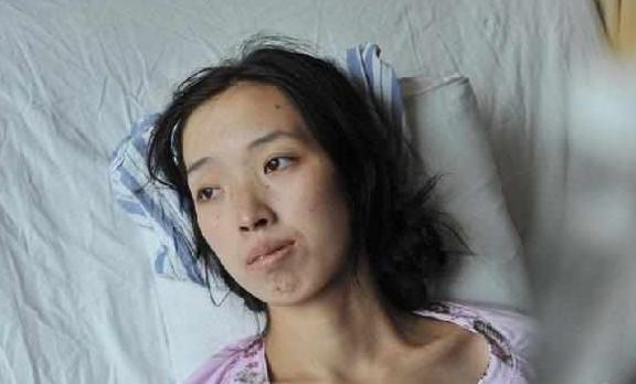 Người phụ nữ 33 tuổi mắc bệnh ung thư dạ dày vì duy trì 1 thói quen ăn sướng miệng, hại thân suốt 13 năm, đáng lo là nhiều người cũng mắc phải - ảnh 1