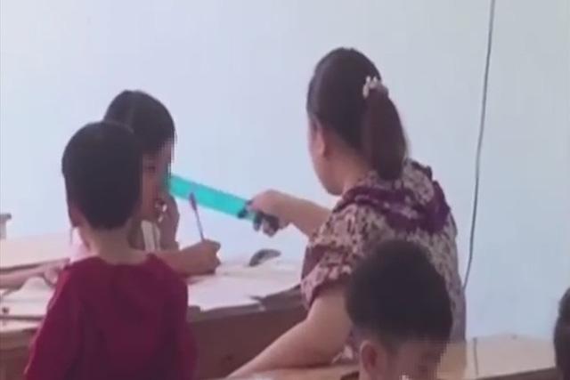 Kết luận vụ nghi vấn nữ giáo viên mầm non dùng thước kẻ đánh gãy răng học sinh - ảnh 1
