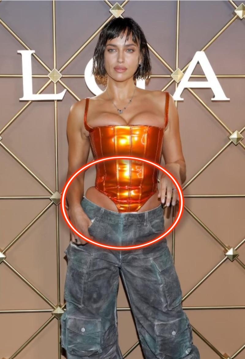 Kinh hoàng người mẫu nổi tiếng bức tử body trong corset siêu chật, nhìn hình PTS mà ám ảnh! - Ảnh 3.