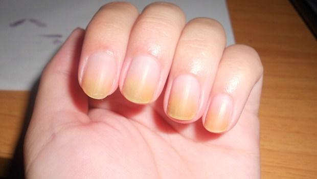 Người có gan kém thường có 4 biểu hiện bất thường ở bàn tay, nếu không có thì gan vẫn rất khỏe mạnh - ảnh 3