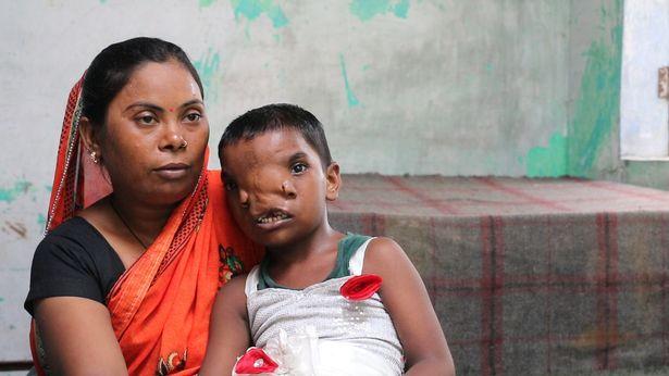 Bé gái có 2 mũi trên gương mặt dị dạng nhưng được cả vùng yêu mến, có được mời cũng không phẫu thuật thẩm mỹ vì lý do thú vị - ảnh 3