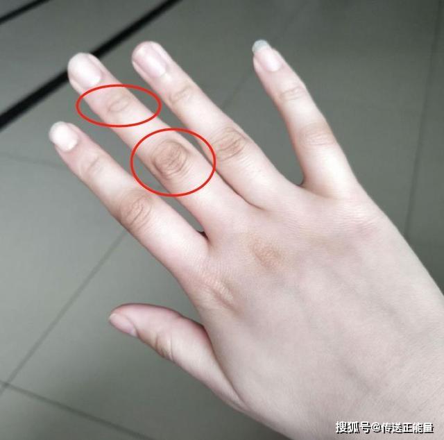 4 dấu hiệu bất thường ở ngón tay giữa cảnh báo gan đang yếu, nên đi khám ngay - ảnh 1