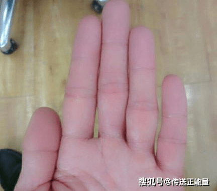 4 dấu hiệu bất thường ở ngón tay giữa cảnh báo gan đang yếu, nên đi khám ngay - ảnh 2