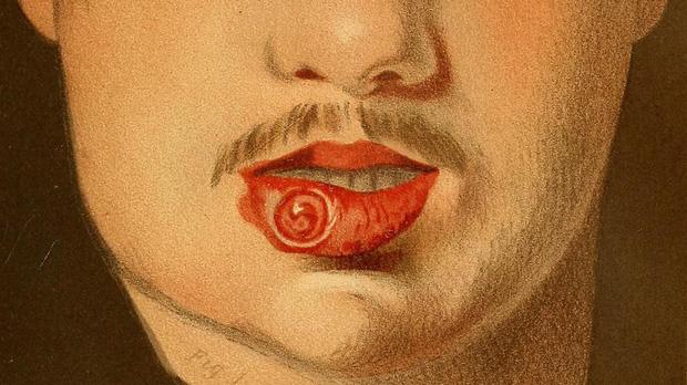 Nghi vấn Ngô Diệc Phàm mắc bệnh giang mai: căn bệnh này có thể tàn phá con người nghiêm trọng nếu quan hệ không an toàn - ảnh 6