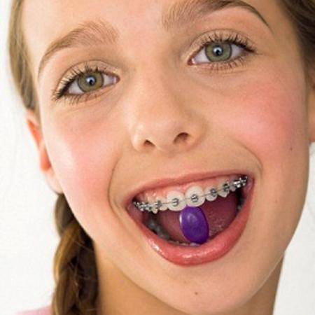 Khi niềng răng, bạn nên ăn uống như thế này nha 1