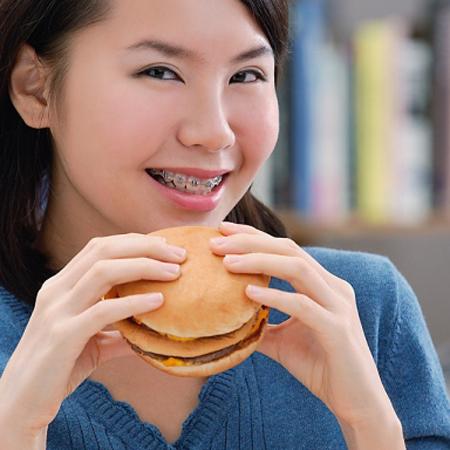Nên ăn gì khi niềng răng và kiêng những gì -Bác sỹ tư vấn