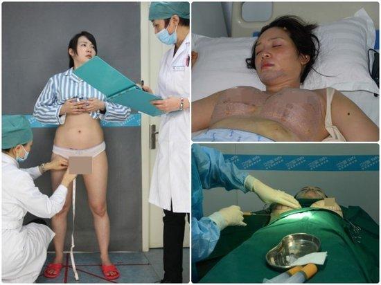 Hậu tự sát, sao Đài Loan tung ảnh phẫu thuật ngực 6