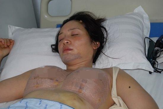 Hậu tự sát, sao Đài Loan tung ảnh phẫu thuật ngực 5