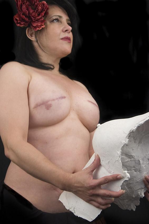 Ám ảnh những chân dung phụ nữ sau phẫu thuật cắt bỏ ngực 4