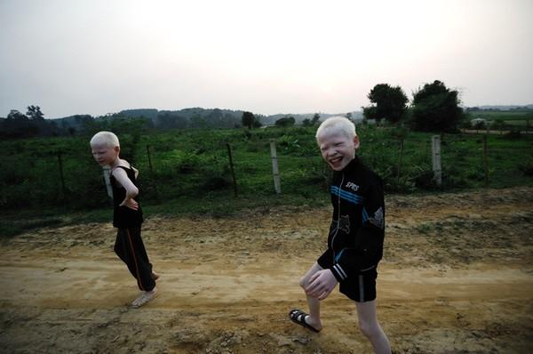 Bộ ảnh độc về cuộc sống của cặp song sinh bạch tạng ở Hà Tĩnh 5