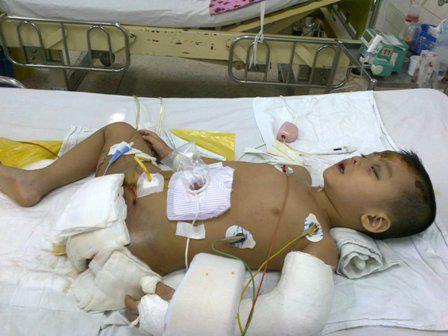 """Cậu bé 4 tuổi mồ côi sau tai nạn: """"Tại sao con lại mất một chân?"""" 3"""