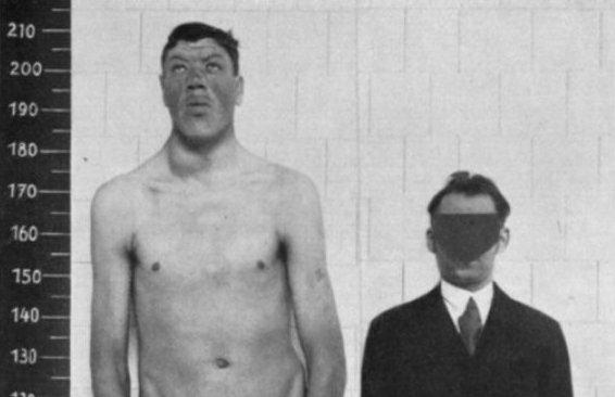 Kỳ lạ người đàn ông sinh ra là người lùn nhưng cuối đời là người khổng lồ 1