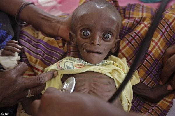 Những hình ảnh giật mình về nạn đói và sự lãng phí 12