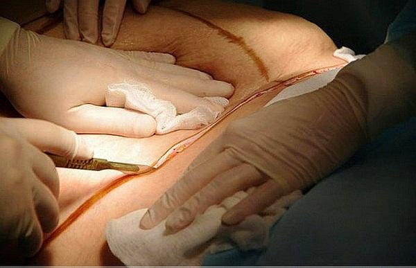 Cận cảnh quy trình phẫu thuật thẩm mỹ - hút mỡ bụng 5
