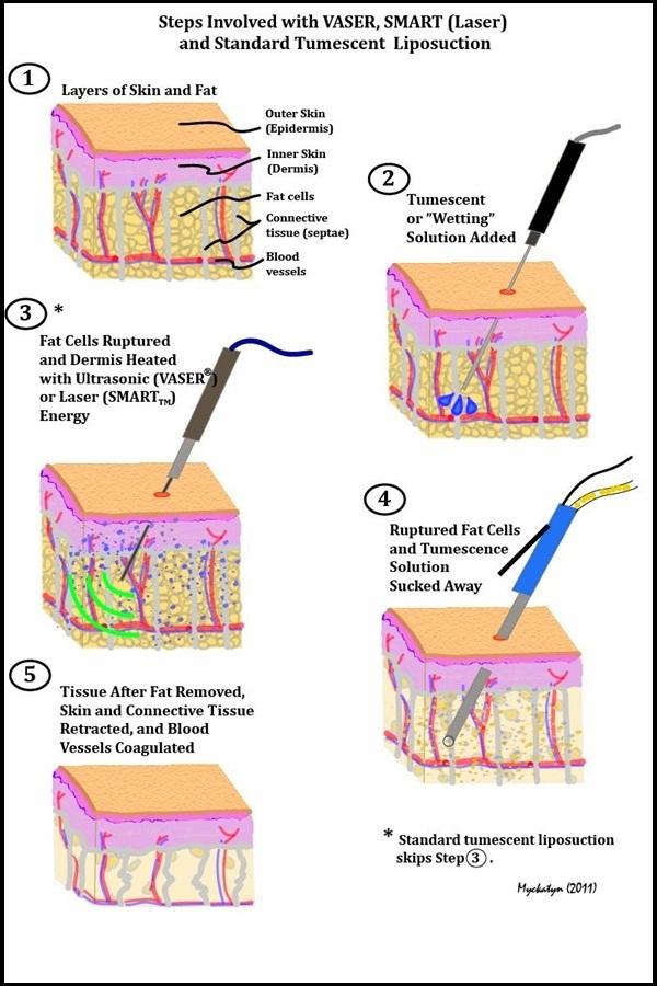 Cận cảnh quy trình phẫu thuật thẩm mỹ - hút mỡ bụng 9