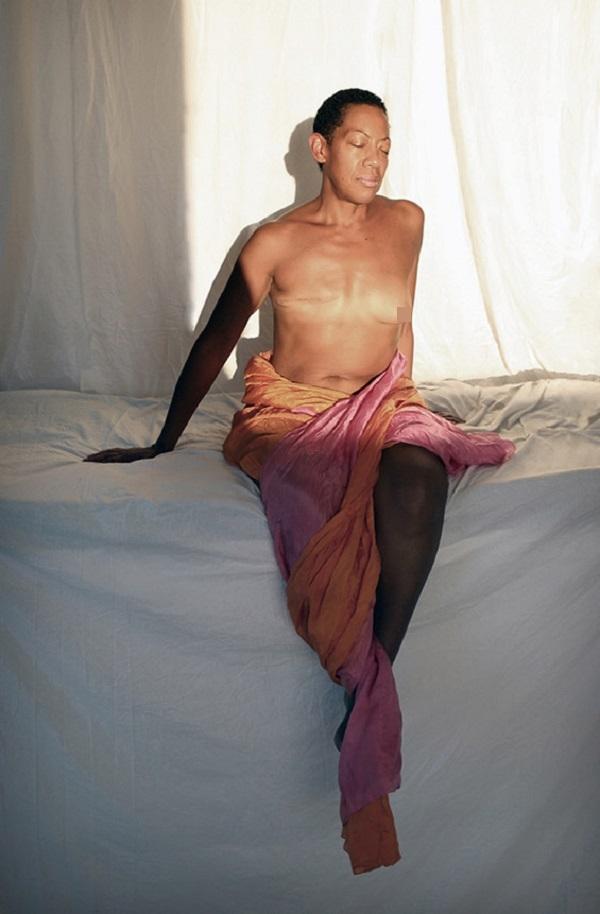 Ám ảnh những chân dung phụ nữ sau phẫu thuật cắt bỏ ngực 1