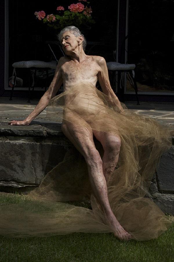 Ám ảnh những chân dung phụ nữ sau phẫu thuật cắt bỏ ngực 3