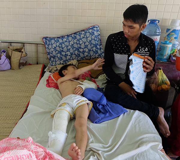 Bé trai 6 tuổi bị cha dượng bạo hành được chuyển viện để phẫu thuật lắp xương 1