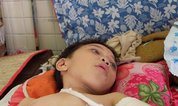 Bé trai 6 tuổi bị cha dượng bạo hành được chuyển viện để phẫu thuật lắp xương 2
