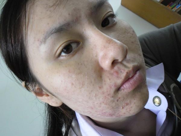 Dùng kem trộn không rõ nguồn gốc, cô gái xinh đẹp Thái Lan mọc mụn chi chít 3