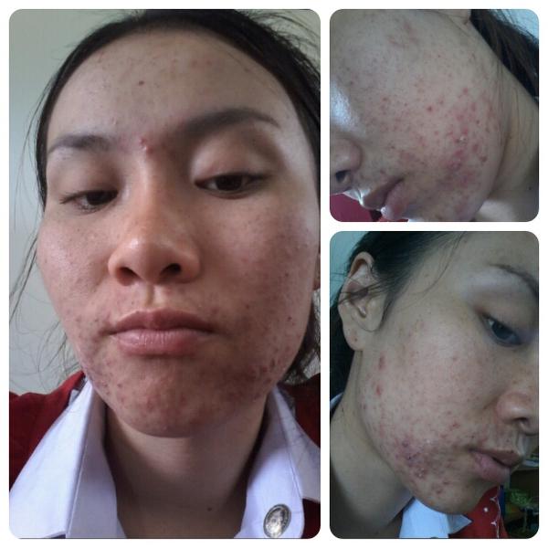 Dùng kem trộn không rõ nguồn gốc, cô gái xinh đẹp Thái Lan mọc mụn chi chít 4