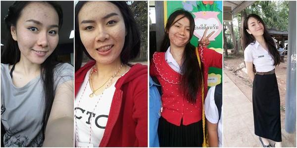 Dùng kem trộn không rõ nguồn gốc, cô gái xinh đẹp Thái Lan mọc mụn chi chít 7