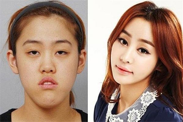Cuộc lột xác ngoạn mục của cô gái Hàn sau phẫu thuật 1