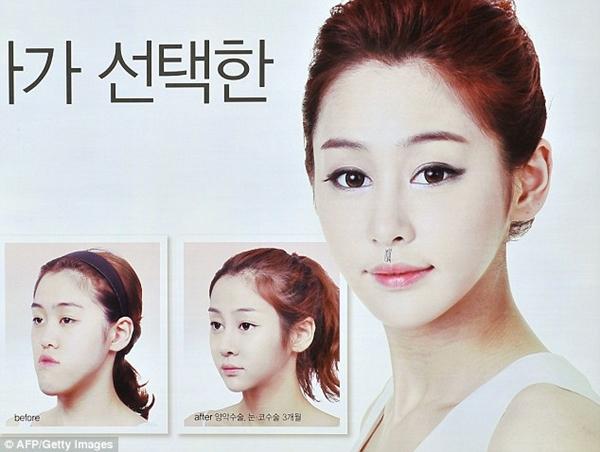 Nỗi ám ảnh phẫu thuật thẩm mỹ của dân Hàn 4