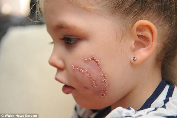 Bé gái 3 tuổi bị chó cắn nát 1 bên mặt 3