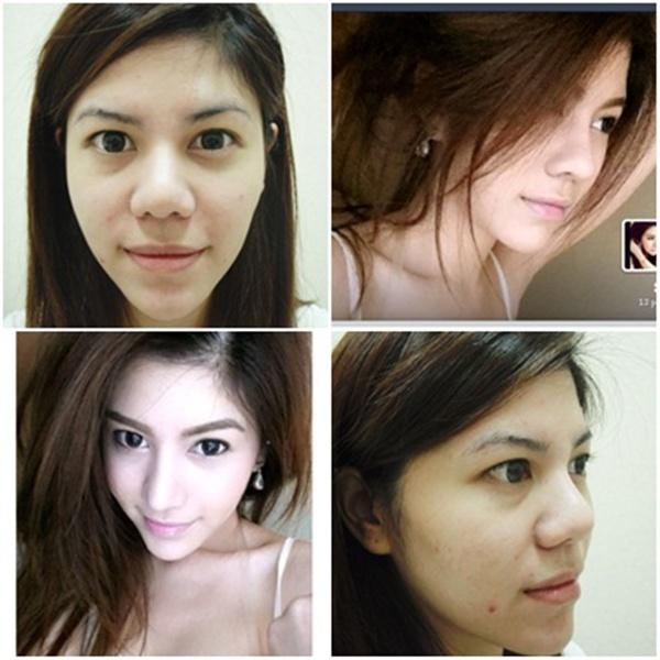 Loạt ảnh trước và sau phẫu thuật thẩm mỹ của những cô gái Thái 3