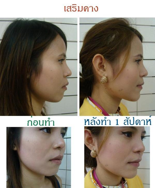 Loạt ảnh trước và sau phẫu thuật thẩm mỹ của những cô gái Thái 16