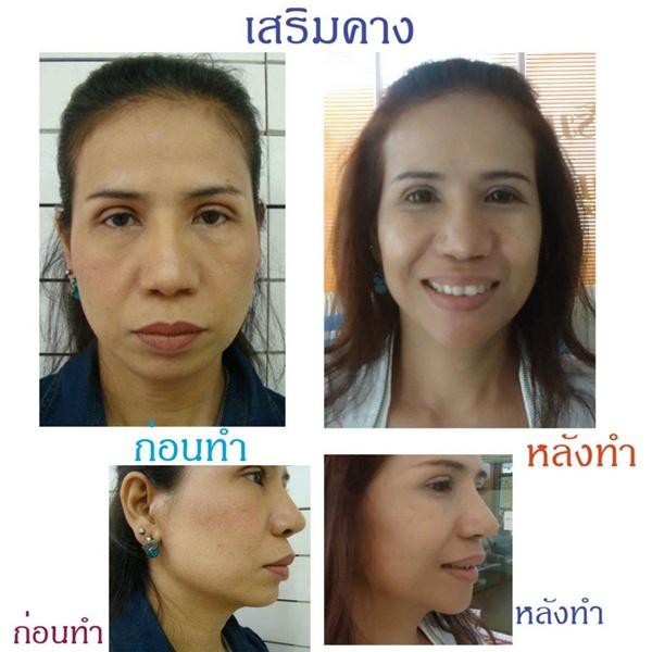 Loạt ảnh trước và sau phẫu thuật thẩm mỹ của những cô gái Thái 4