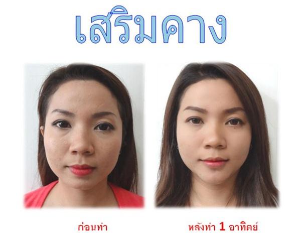Loạt ảnh trước và sau phẫu thuật thẩm mỹ của những cô gái Thái 5
