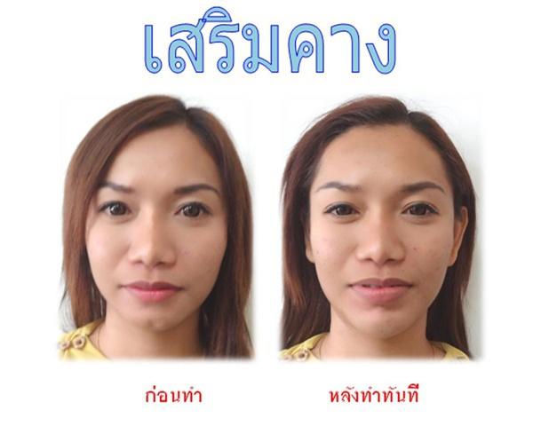 Loạt ảnh trước và sau phẫu thuật thẩm mỹ của những cô gái Thái 6