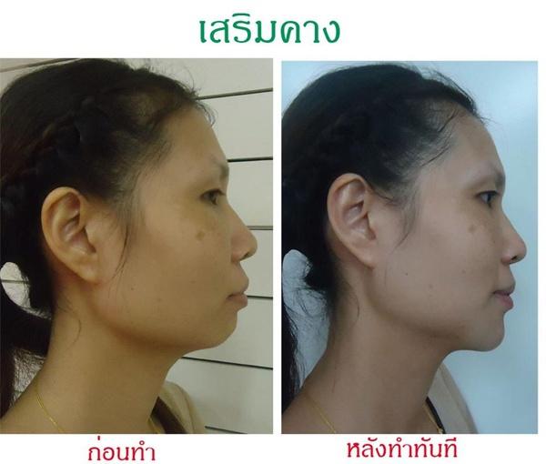Loạt ảnh trước và sau phẫu thuật thẩm mỹ của những cô gái Thái 7