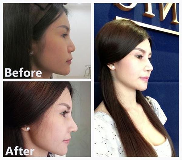 Loạt ảnh trước và sau phẫu thuật thẩm mỹ của những cô gái Thái 2