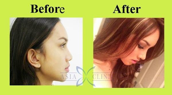Loạt ảnh trước và sau phẫu thuật thẩm mỹ của những cô gái Thái 9