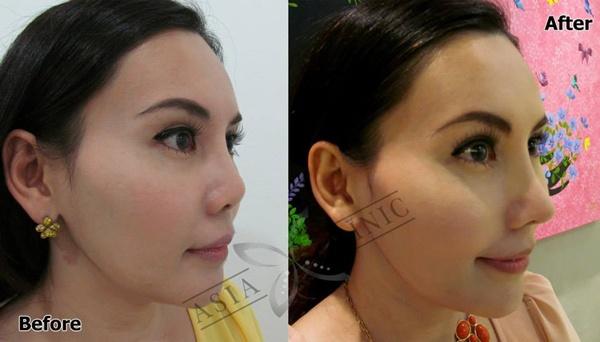 Loạt ảnh trước và sau phẫu thuật thẩm mỹ của những cô gái Thái 1