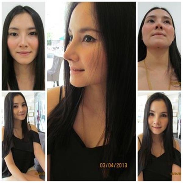 Loạt ảnh trước và sau phẫu thuật thẩm mỹ của những cô gái Thái 10