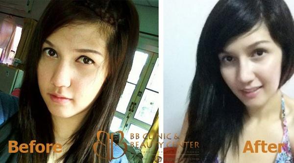 Loạt ảnh trước và sau phẫu thuật thẩm mỹ của những cô gái Thái 13