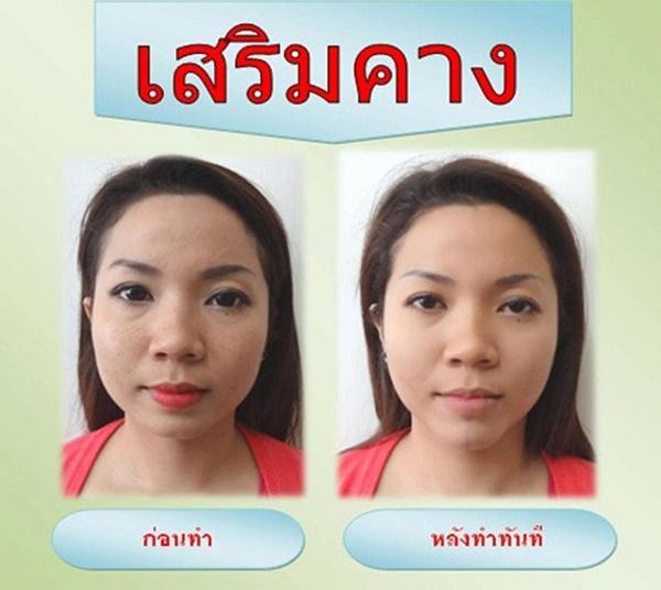 Loạt ảnh trước và sau phẫu thuật thẩm mỹ của những cô gái Thái 14