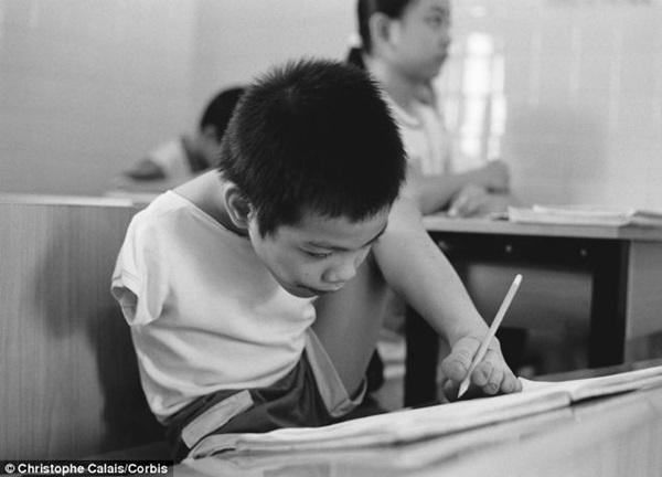 Đau Xót Hình Ảnh Trẻ Em Việt Nam Nhiễm Chất Độc Màu Da Cam Trên Báo
