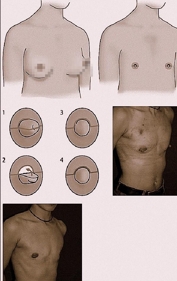 Cận cảnh quá trình phẫu thuật chuyển giới từ nữ sang nam 5
