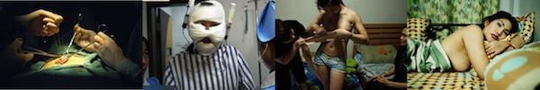 Cận cảnh quá trình phẫu thuật chuyển giới từ nữ sang nam 13