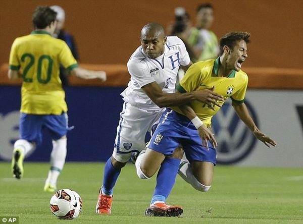 Neymar khoe chân chằng chịt vết thương vì bị đối thủ đốn giò 1