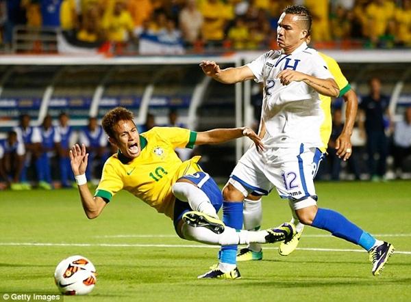 Neymar khoe chân chằng chịt vết thương vì bị đối thủ đốn giò 2