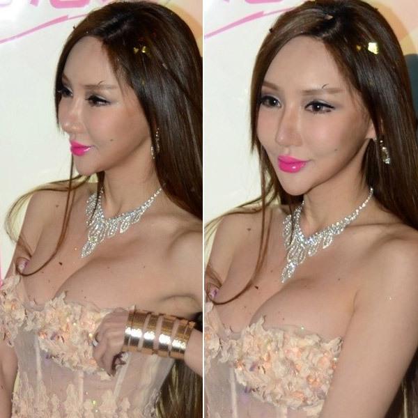 """Những ca """"thẩm mỹ hỏng"""" gây chấn động showbiz châu Á 2014 12"""